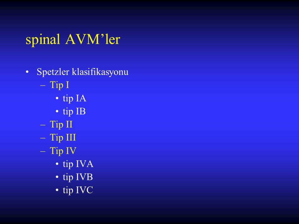 spinal AVM'ler Spetzler klasifikasyonu –Tip I tip IA tip IB –Tip II –Tip III –Tip IV tip IVA tip IVB tip IVC