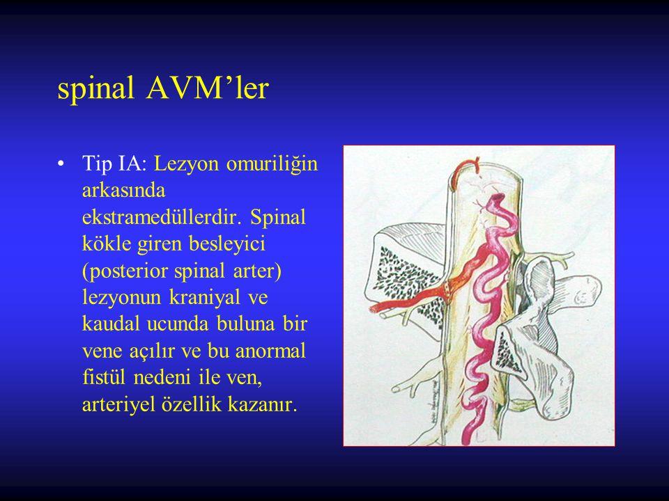 spinal AVM'ler Tip IA: Lezyon omuriliğin arkasında ekstramedüllerdir. Spinal kökle giren besleyici (posterior spinal arter) lezyonun kraniyal ve kauda