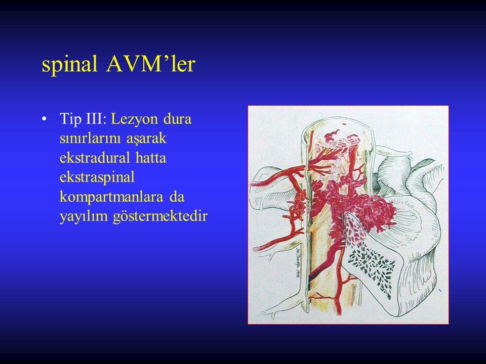 spinal AVM'ler Tip III: Lezyon dura sınırlarını aşarak ekstradural hatta ekstraspinal kompartmanlara da yayılım göstermektedir