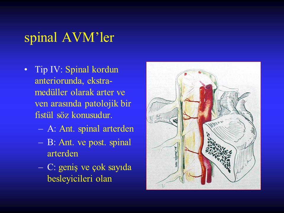 Tip IV: Spinal kordun anteriorunda, ekstra- medüller olarak arter ve ven arasında patolojik bir fistül söz konusudur. –A: Ant. spinal arterden –B: Ant
