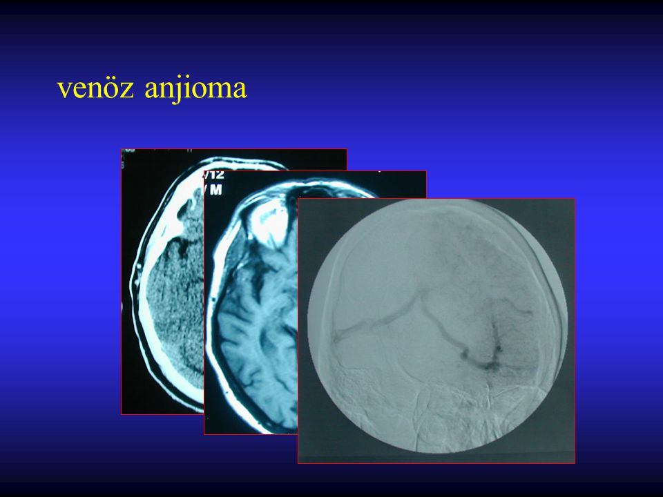 Beyin fonksiyonlarına etki –Lokal kitle etkisi –Kanama –Vasküler çalma –BOS dolaşımını tıkama