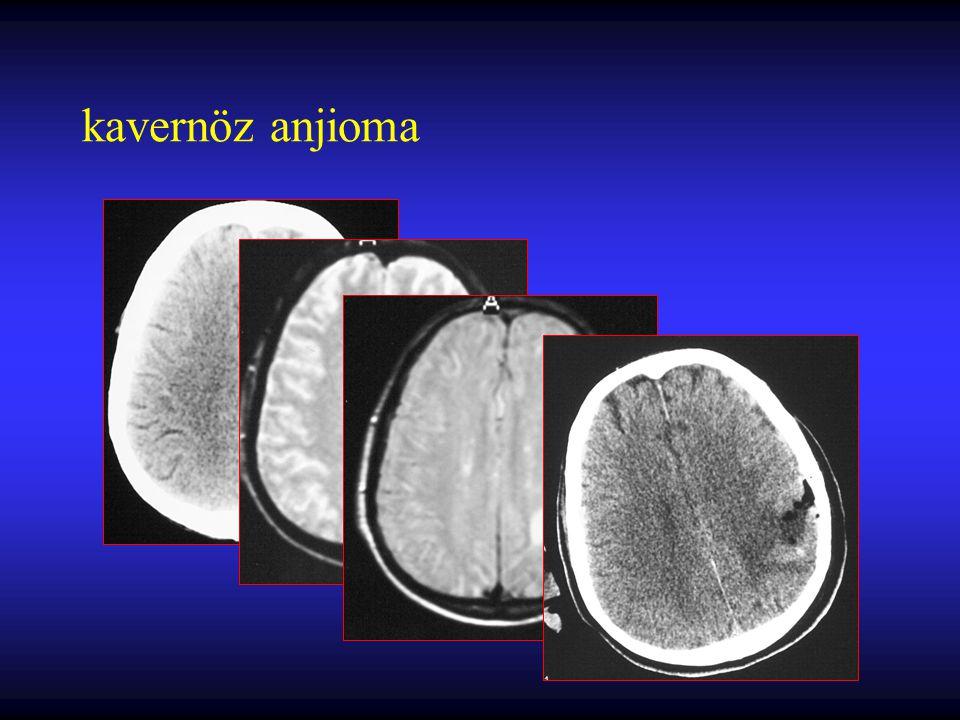 kapiller telenjiektazi Beyin sapı veya derin beyaz cevher lokalizasyonu lezyon içerisinde beyin parankimin olması Çoğu kez patolojik olarak gönderilen örneklerde tanı konulması