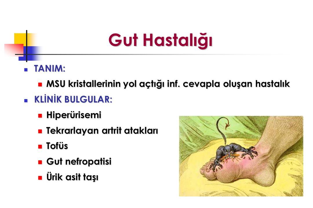 Gut Hastalığı TANIM: TANIM: MSU kristallerinin yol açtığı inf.