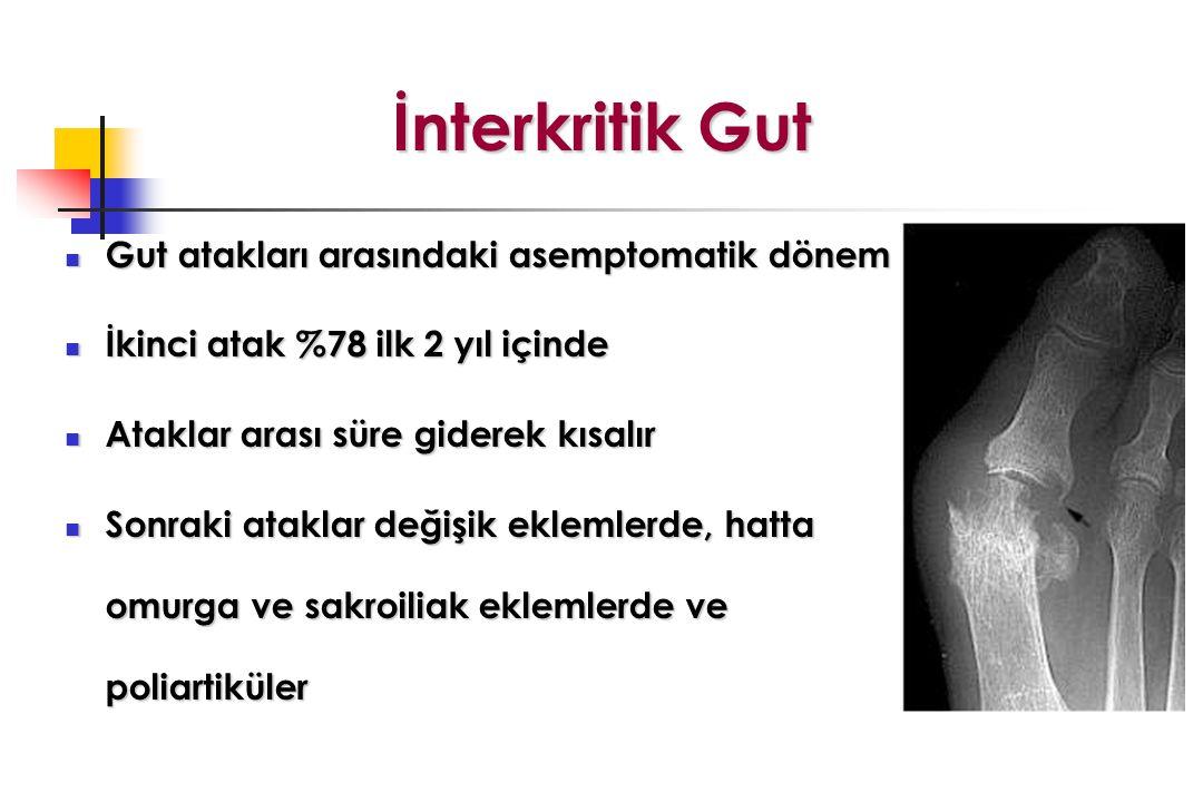 İnterkritik Gut Gut atakları arasındaki asemptomatik dönem Gut atakları arasındaki asemptomatik dönem İkinci atak %78 ilk 2 yıl içinde İkinci atak %78 ilk 2 yıl içinde Ataklar arası süre giderek kısalır Ataklar arası süre giderek kısalır Sonraki ataklar değişik eklemlerde, hatta omurga ve sakroiliak eklemlerde ve poliartiküler Sonraki ataklar değişik eklemlerde, hatta omurga ve sakroiliak eklemlerde ve poliartiküler