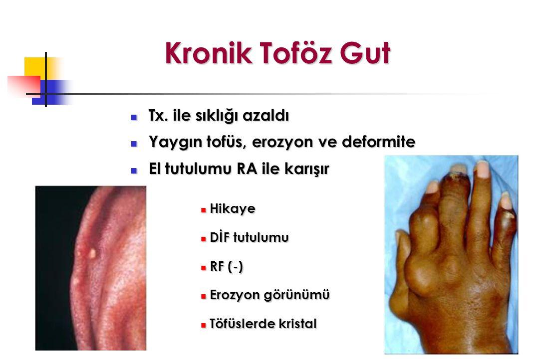 Kronik Toföz Gut Tx. ile sıklığı azaldı Tx. ile sıklığı azaldı Yaygın tofüs, erozyon ve deformite Yaygın tofüs, erozyon ve deformite El tutulumu RA il
