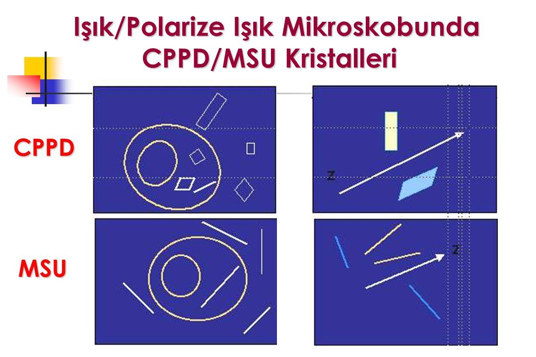 Işık/Polarize Işık Mikroskobunda CPPD/MSU Kristalleri Işık/Polarize Işık Mikroskobunda CPPD/MSU Kristalleri CPPD MSU