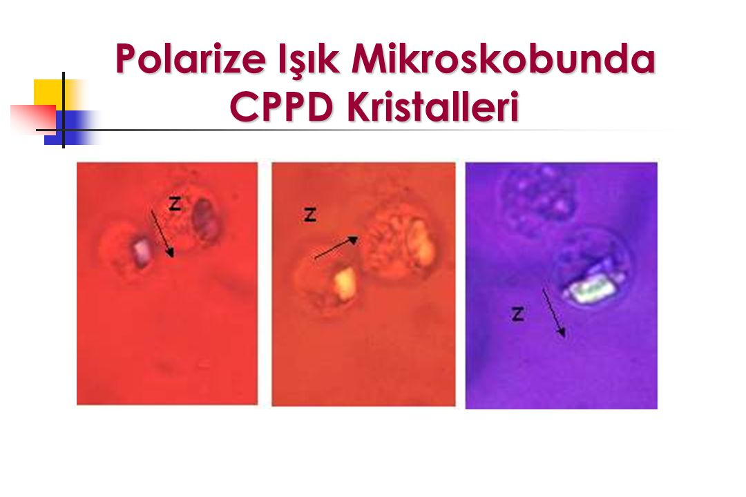 Polarize Işık Mikroskobunda CPPD Kristalleri Polarize Işık Mikroskobunda CPPD Kristalleri