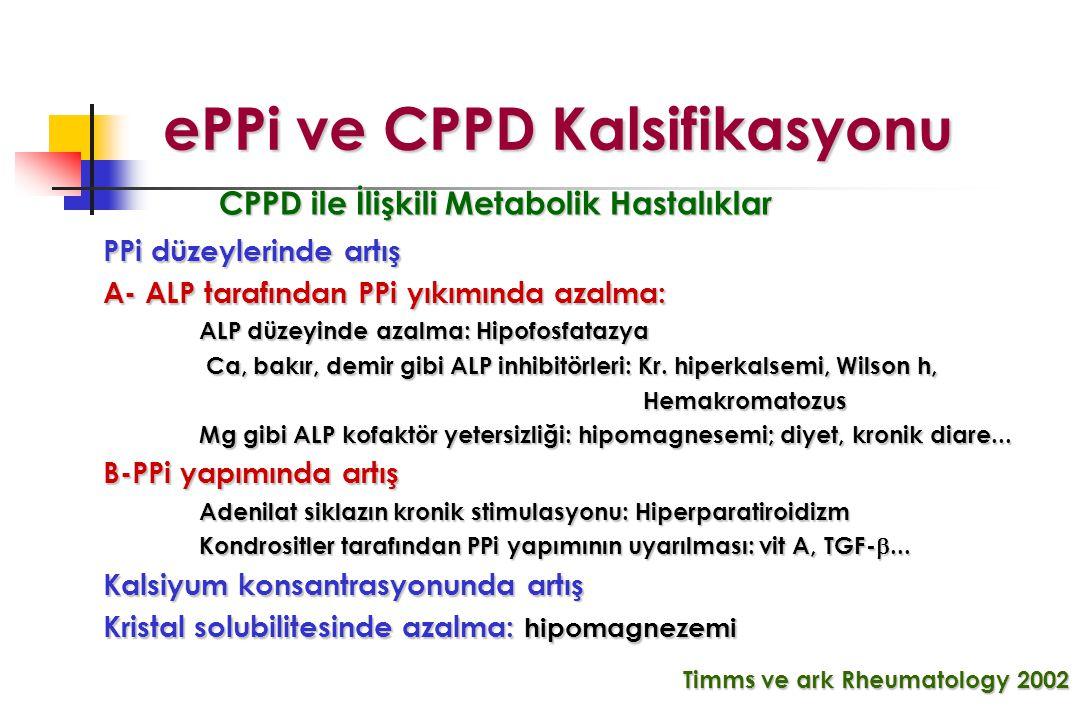 Timms ve ark Rheumatology 2002 ePPi ve CPPD Kalsifikasyonu ePPi ve CPPD Kalsifikasyonu PPi düzeylerinde artış A- ALP tarafından PPi yıkımında azalma: ALP düzeyinde azalma: Hipofosfatazya Ca, bakır, demir gibi ALP inhibitörleri: Kr.