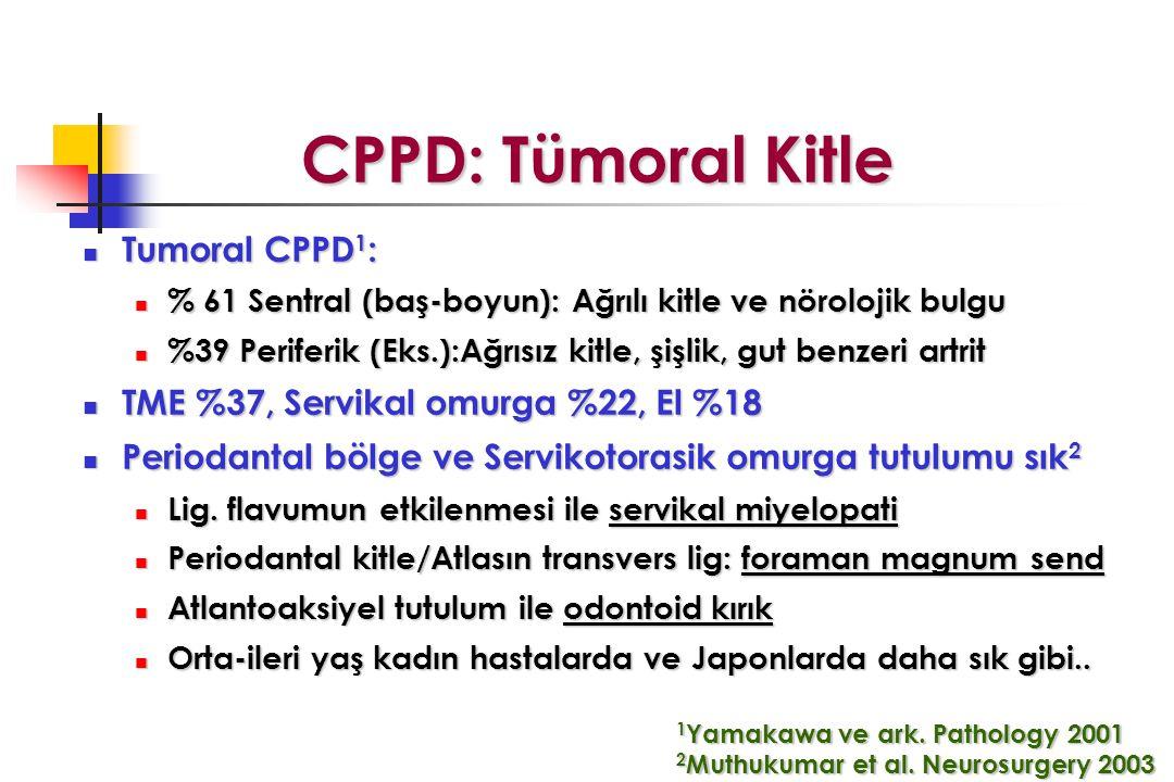 CPPD: Tümoral Kitle Tumoral CPPD 1 : Tumoral CPPD 1 : % 61 Sentral (baş-boyun): Ağrılı kitle ve nörolojik bulgu % 61 Sentral (baş-boyun): Ağrılı kitle ve nörolojik bulgu %39 Periferik (Eks.):Ağrısız kitle, şişlik, gut benzeri artrit %39 Periferik (Eks.):Ağrısız kitle, şişlik, gut benzeri artrit TME %37, Servikal omurga %22, El %18 TME %37, Servikal omurga %22, El %18 Periodantal bölge ve Servikotorasik omurga tutulumu sık 2 Periodantal bölge ve Servikotorasik omurga tutulumu sık 2 Lig.