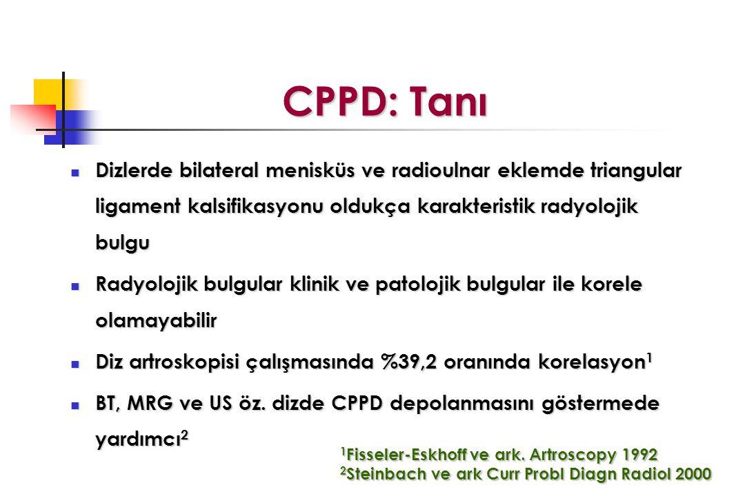CPPD: Tanı CPPD: Tanı Dizlerde bilateral menisküs ve radioulnar eklemde triangular ligament kalsifikasyonu oldukça karakteristik radyolojik bulgu Dizl