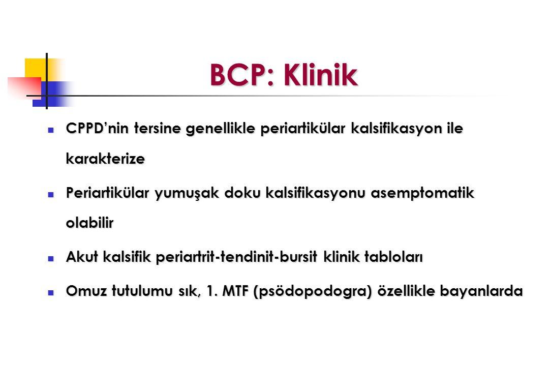 BCP: Klinik BCP: Klinik CPPD'nin tersine genellikle periartikülar kalsifikasyon ile karakterize CPPD'nin tersine genellikle periartikülar kalsifikasyon ile karakterize Periartikülar yumuşak doku kalsifikasyonu asemptomatik olabilir Periartikülar yumuşak doku kalsifikasyonu asemptomatik olabilir Akut kalsifik periartrit-tendinit-bursit klinik tabloları Akut kalsifik periartrit-tendinit-bursit klinik tabloları Omuz tutulumu sık, 1.