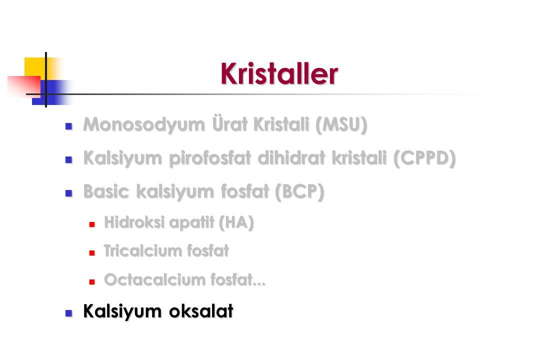 Kristaller Kristaller Monosodyum Ürat Kristali (MSU) Monosodyum Ürat Kristali (MSU) Kalsiyum pirofosfat dihidrat kristali (CPPD) Kalsiyum pirofosfat d