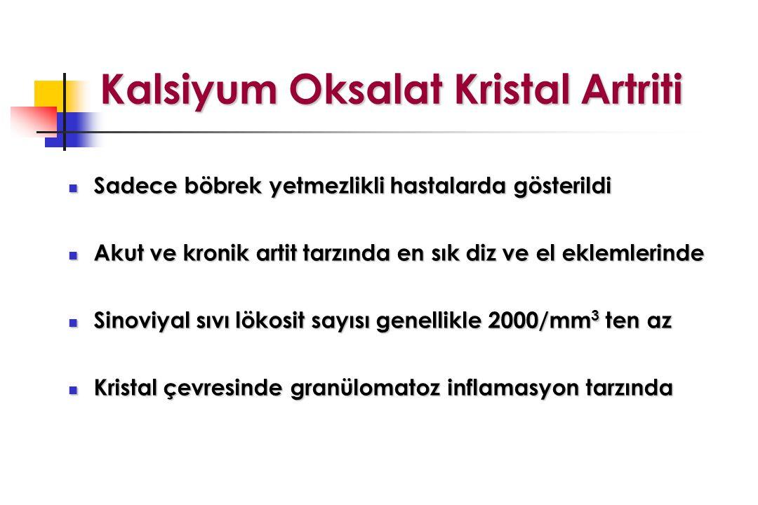 Kalsiyum Oksalat Kristal Artriti Kalsiyum Oksalat Kristal Artriti Sadece böbrek yetmezlikli hastalarda gösterildi Sadece böbrek yetmezlikli hastalarda gösterildi Akut ve kronik artit tarzında en sık diz ve el eklemlerinde Akut ve kronik artit tarzında en sık diz ve el eklemlerinde Sinoviyal sıvı lökosit sayısı genellikle 2000/mm 3 ten az Sinoviyal sıvı lökosit sayısı genellikle 2000/mm 3 ten az Kristal çevresinde granülomatoz inflamasyon tarzında Kristal çevresinde granülomatoz inflamasyon tarzında