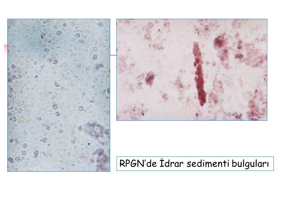 RPGN'de İdrar sedimenti bulguları