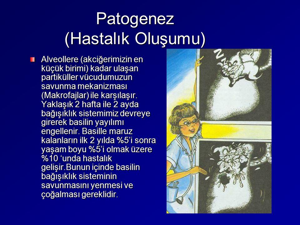 Patogenez (Hastalık Oluşumu) Alveollere (akciğerimizin en küçük birimi) kadar ulaşan partiküller vücudumuzun savunma mekanizması (Makrofajlar) ile kar