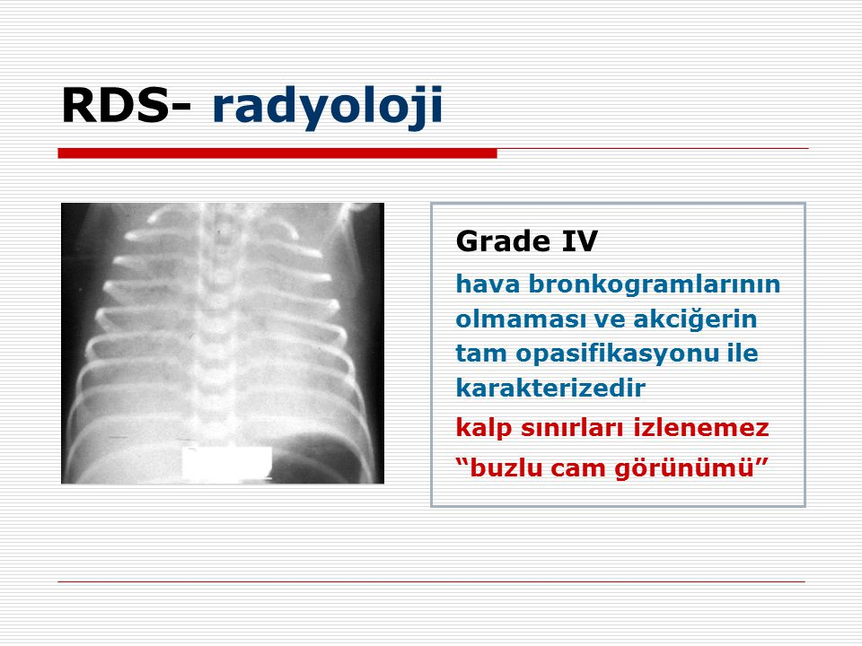 Grade IV hava bronkogramlarının olmaması ve akciğerin tam opasifikasyonu ile karakterizedir kalp sınırları izlenemez buzlu cam görünümü RDS- radyoloji