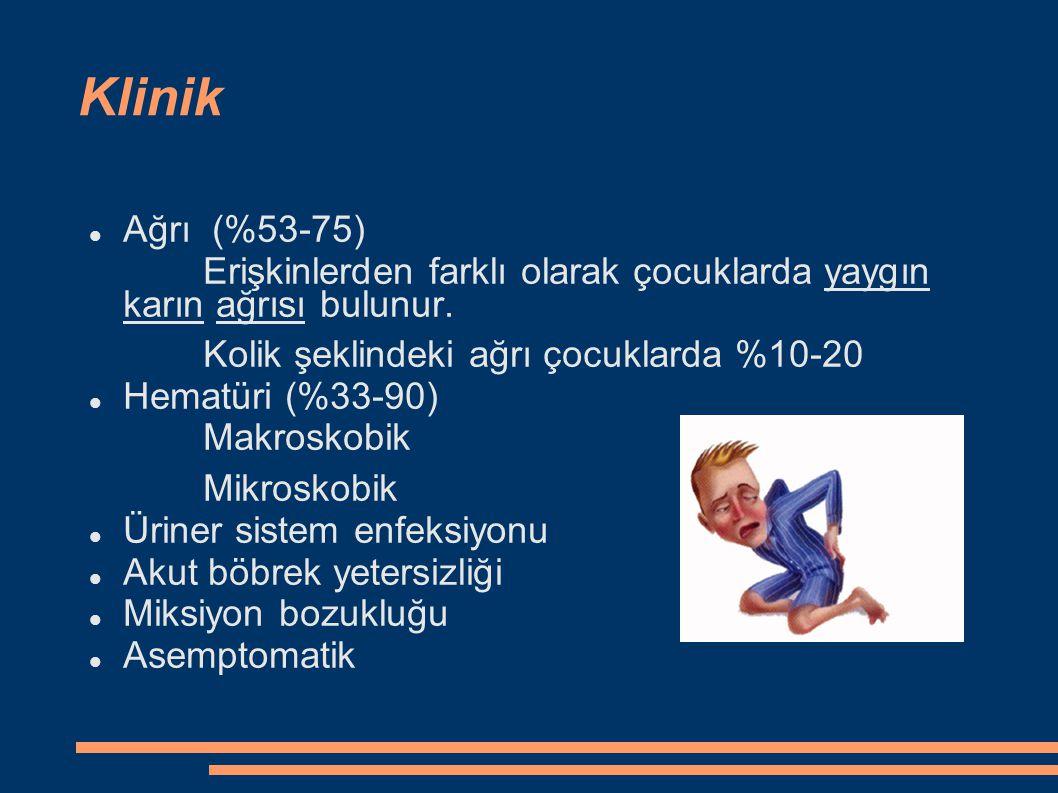 Klinik Ağrı (%53-75) Erişkinlerden farklı olarak çocuklarda yaygın karın ağrısı bulunur. Kolik şeklindeki ağrı çocuklarda %10-20 Hematüri (%33-90) Mak