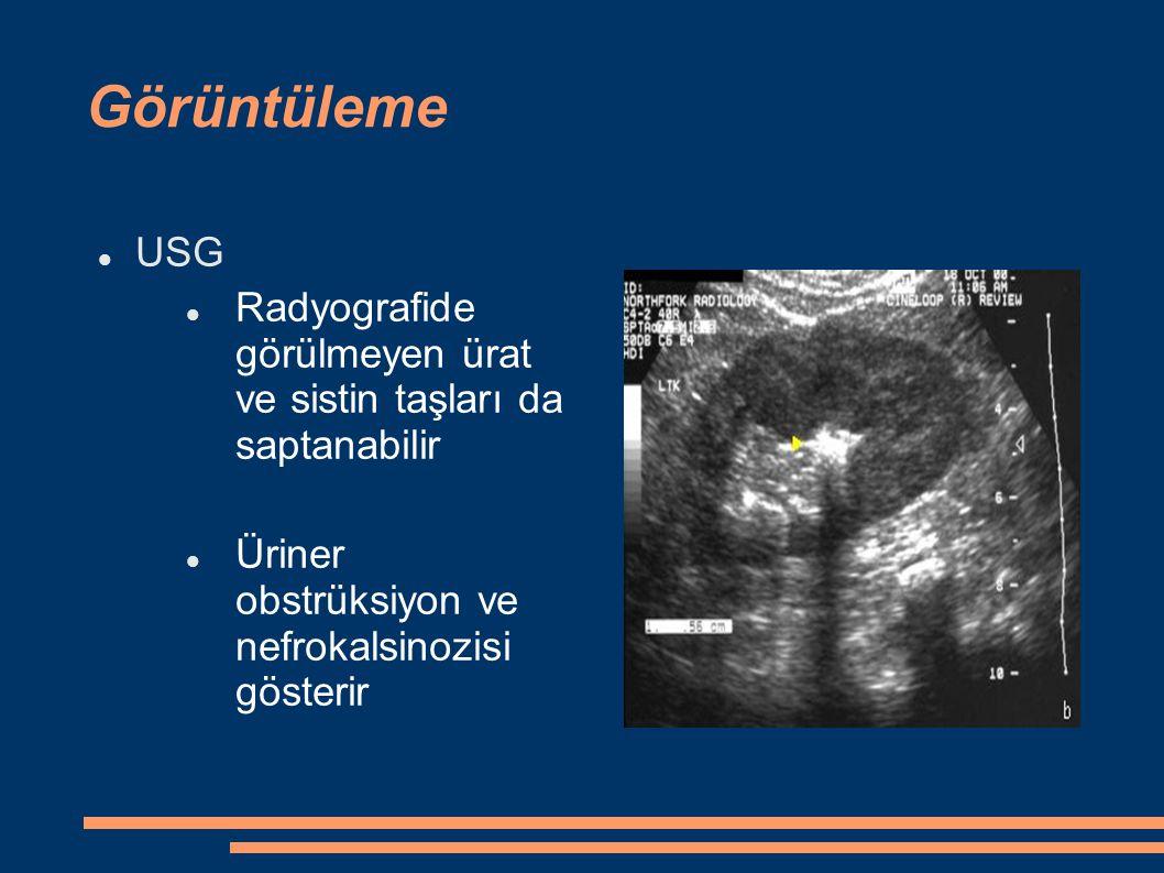 Görüntüleme USG Radyografide görülmeyen ürat ve sistin taşları da saptanabilir Üriner obstrüksiyon ve nefrokalsinozisi gösterir