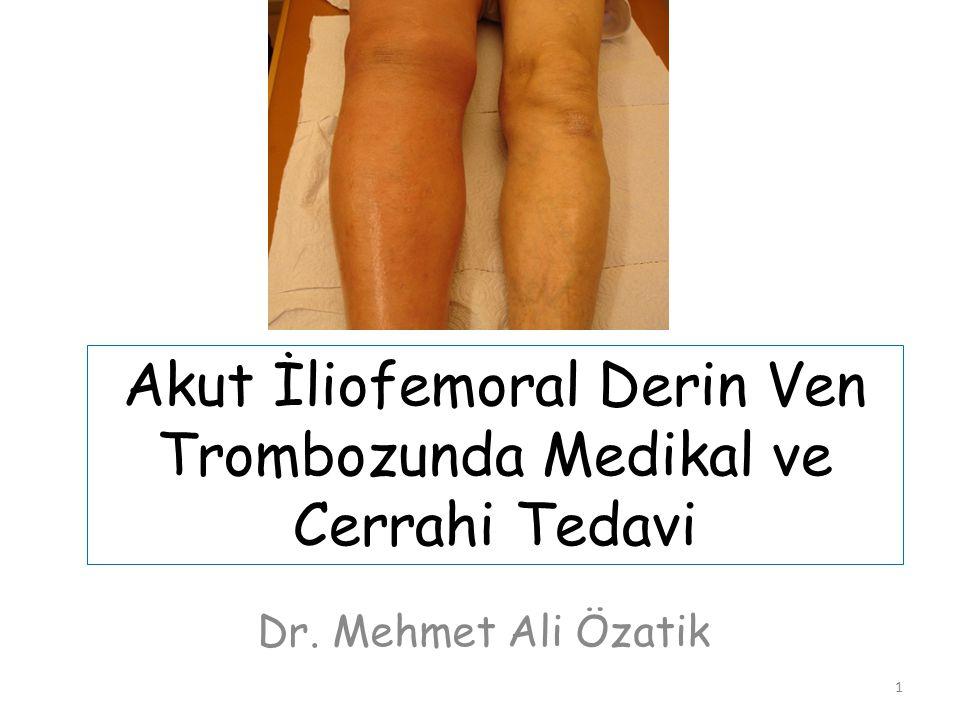 1 Akut İliofemoral Derin Ven Trombozunda Medikal ve Cerrahi Tedavi Dr. Mehmet Ali Özatik