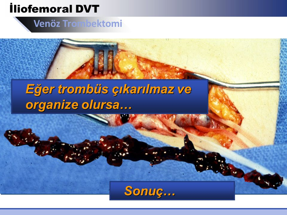Venöz Trombektomi İliofemoral DVT Eğer trombüs çıkarılmaz ve organize olursa… Sonuç…
