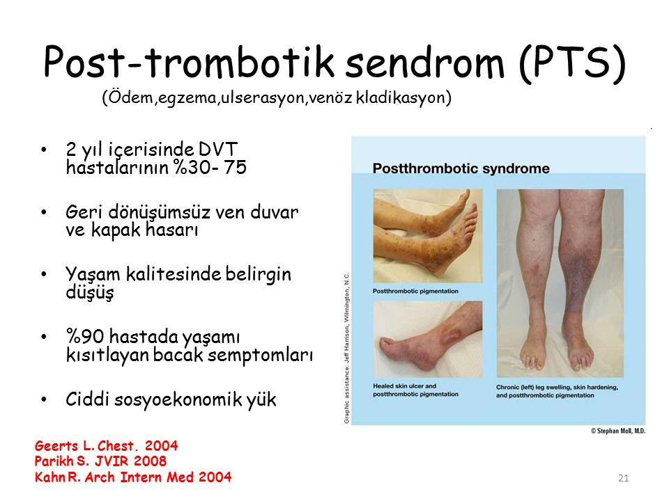 21 Post-trombotik sendrom (PTS) 2 yıl içerisinde DVT hastalarının %30- 75 Geri dönüşümsüz ven duvar ve kapak hasarı Yaşam kalitesinde belirgin düşüş %