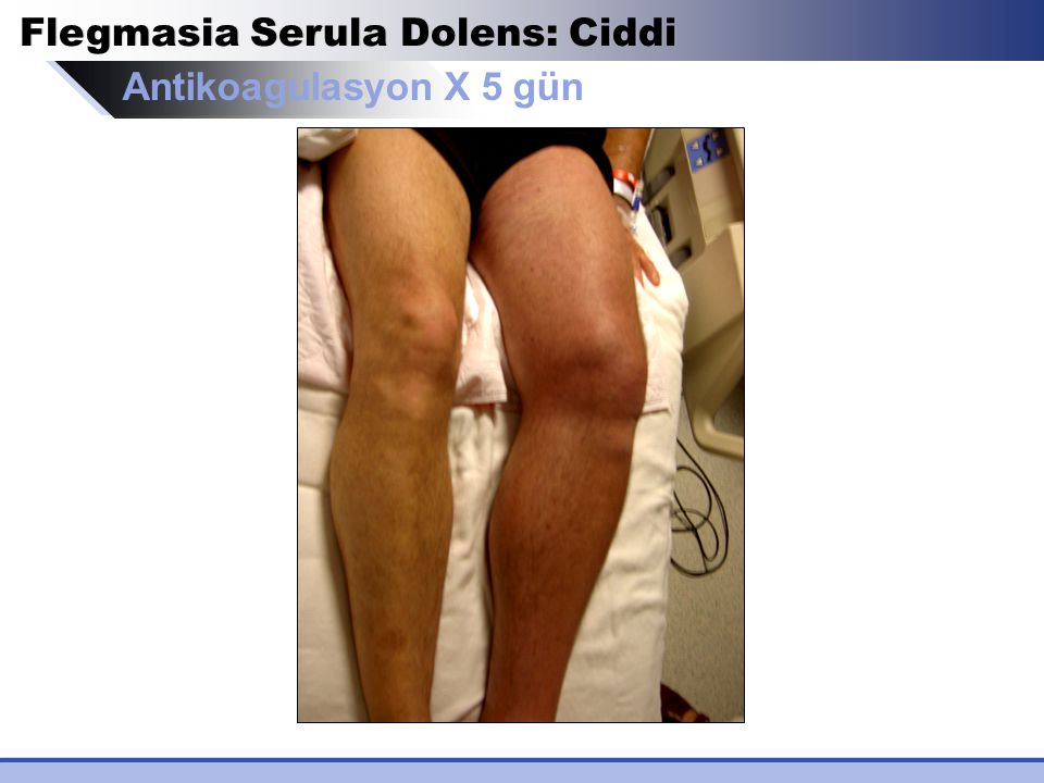 Antikoagulasyon X 5 gün Flegmasia Serula Dolens: Ciddi