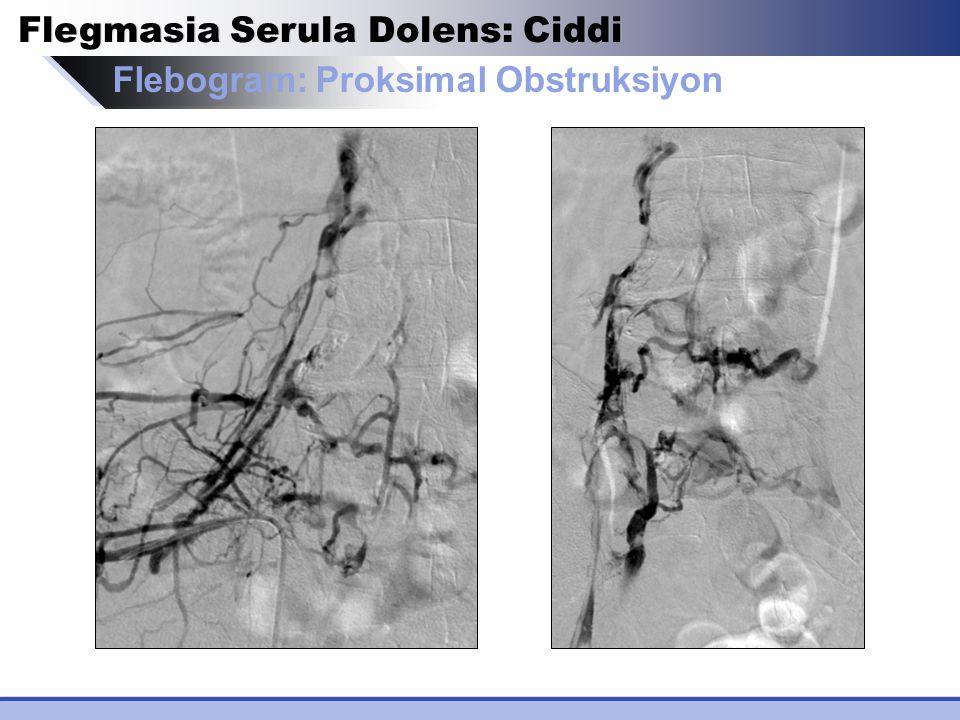 Flebogram: Proksimal Obstruksiyon Flegmasia Serula Dolens: Ciddi