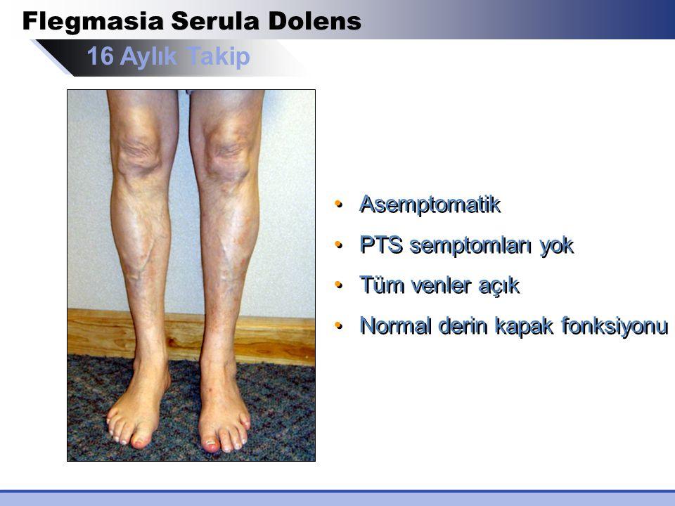 Flegmasia Serula Dolens Asemptomatik PTS semptomları yok Tüm venler açık Normal derin kapak fonksiyonu Asemptomatik PTS semptomları yok Tüm venler açı