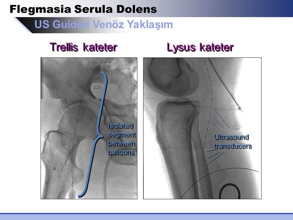 US Guided Venöz Yaklaşım Trellis kateter Lysus kateter Flegmasia Serula Dolens Isolated segment between balloons Ultrasound transducers