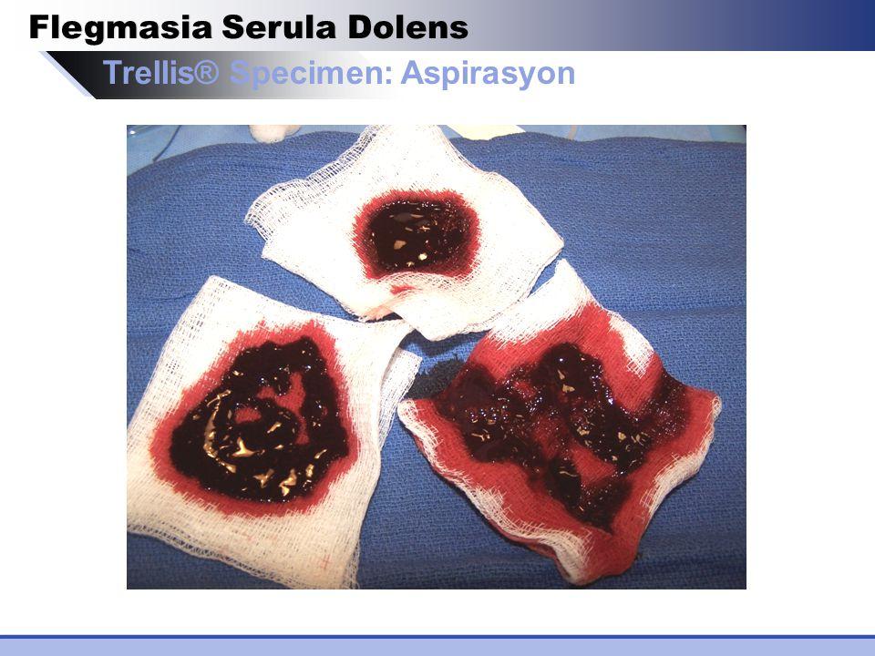 Trellis® Specimen: Aspirasyon Flegmasia Serula Dolens