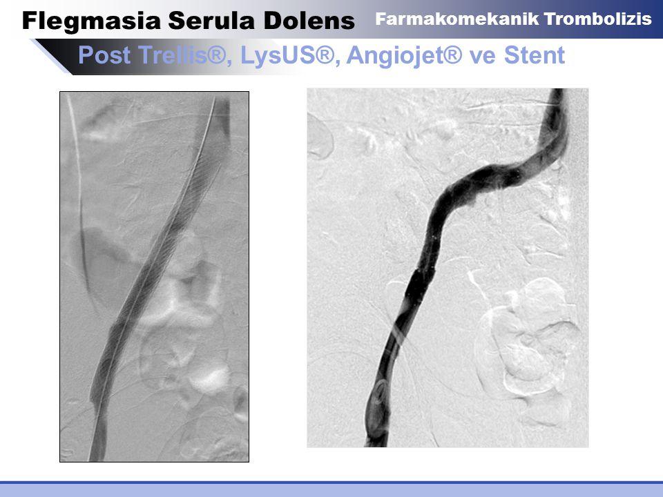 Post Trellis®, LysUS®, Angiojet® ve Stent Flegmasia Serula Dolens Farmakomekanik Trombolizis