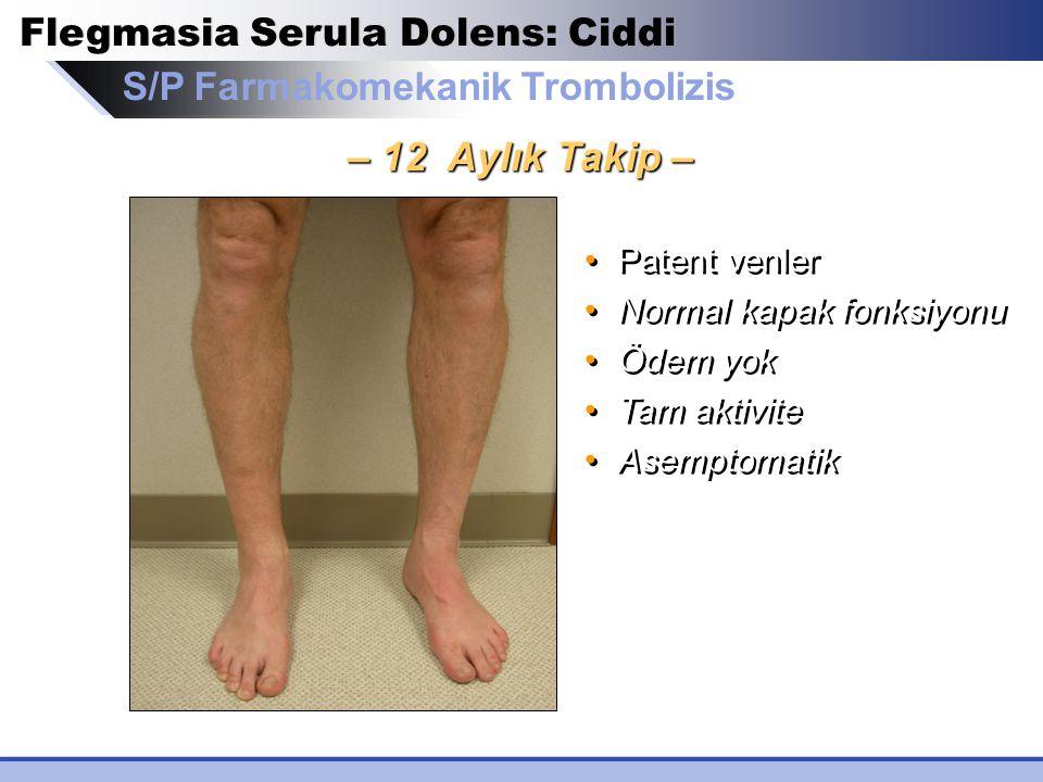 S/P Farmakomekanik Trombolizis Flegmasia Serula Dolens: Ciddi – 12 Aylık Takip – Patent venler Normal kapak fonksiyonu Ödem yok Tam aktivite Asemptoma