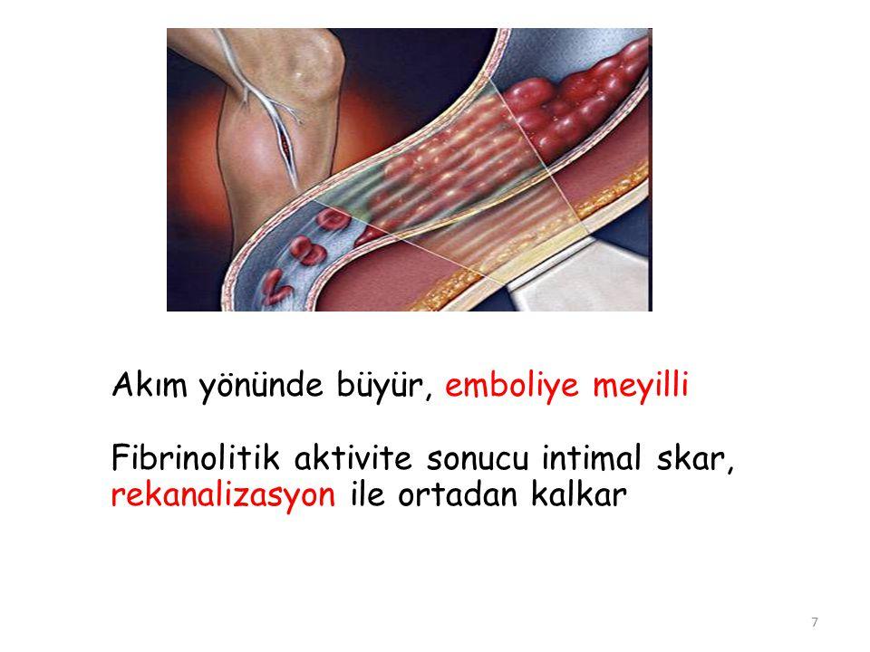 7 Akım yönünde büyür, emboliye meyilli Fibrinolitik aktivite sonucu intimal skar, rekanalizasyon ile ortadan kalkar