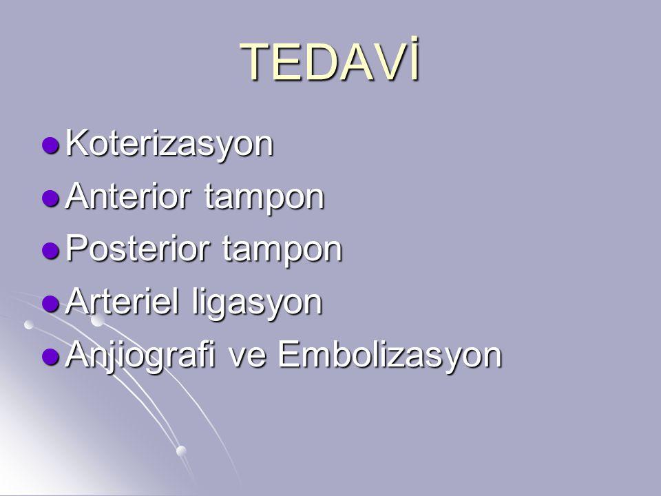 TEDAVİ Koterizasyon Koterizasyon Anterior tampon Anterior tampon Posterior tampon Posterior tampon Arteriel ligasyon Arteriel ligasyon Anjiografi ve Embolizasyon Anjiografi ve Embolizasyon