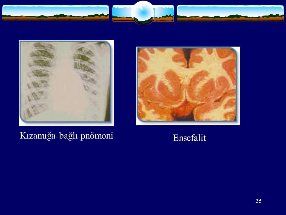 35 Kızamığa bağlı pnömoni Ensefalit