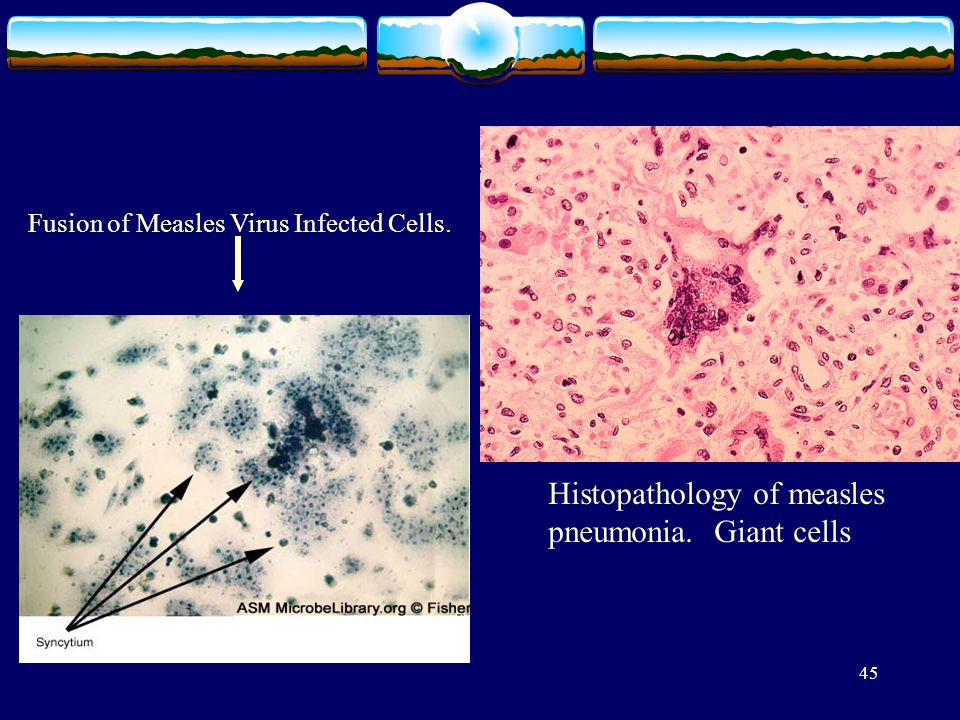 45 Fusion of Measles Virus Infected Cells. Histopathology of measles pneumonia. Giant cells