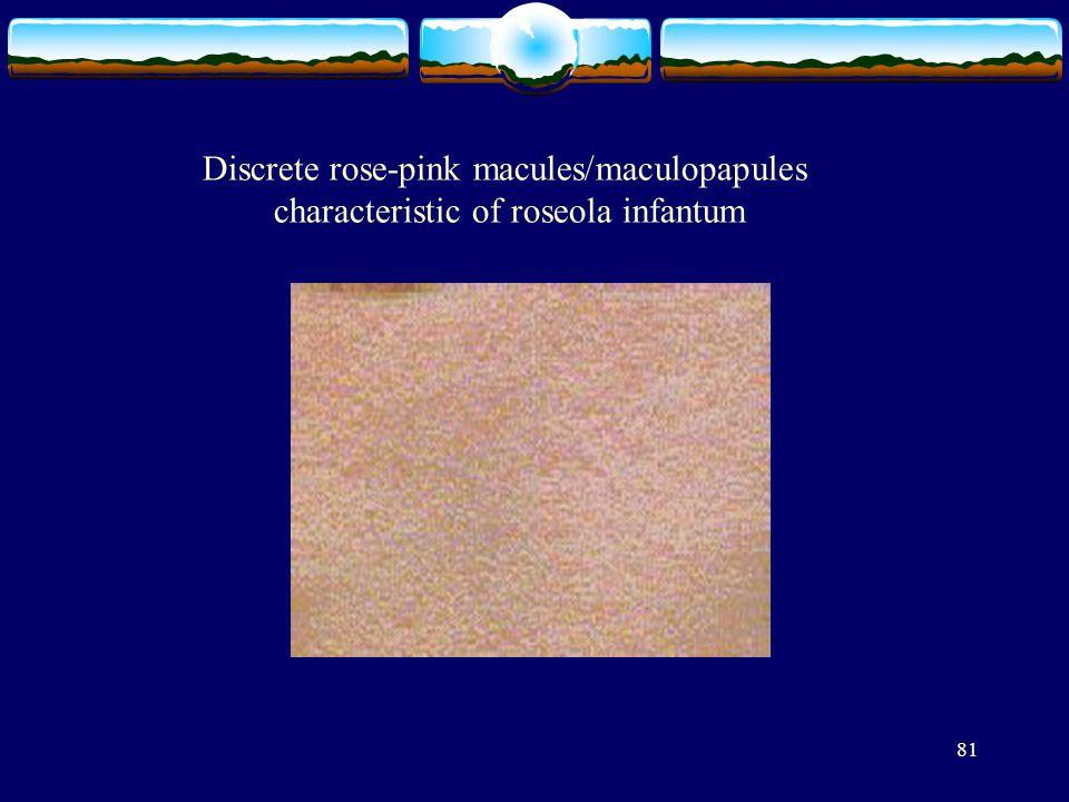 81 Discrete rose-pink macules/maculopapules characteristic of roseola infantum