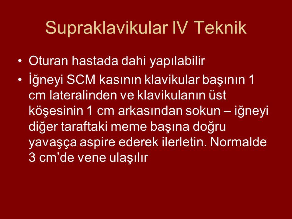 Supraklavikular IV Teknik Oturan hastada dahi yapılabilir İğneyi SCM kasının klavikular başının 1 cm lateralinden ve klavikulanın üst köşesinin 1 cm a
