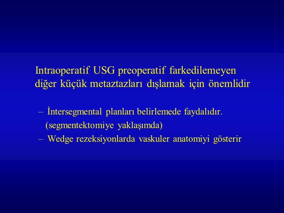 Intraoperatif USG preoperatif farkedilemeyen diğer küçük metaztazları dışlamak için önemlidir –İntersegmental planları belirlemede faydalıdır. (segmen