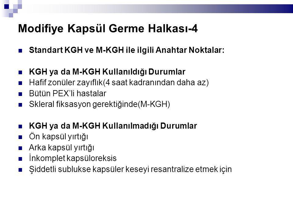 Modifiye Kapsül Germe Halkası-4 Standart KGH ve M-KGH ile ilgili Anahtar Noktalar: KGH ya da M-KGH Kullanıldığı Durumlar Hafif zonüler zayıflık(4 saat kadranından daha az) Bütün PEX'li hastalar Skleral fiksasyon gerektiğinde(M-KGH) KGH ya da M-KGH Kullanılmadığı Durumlar Ön kapsül yırtığı Arka kapsül yırtığı İnkomplet kapsüloreksis Şiddetli sublukse kapsüler keseyi resantralize etmek için
