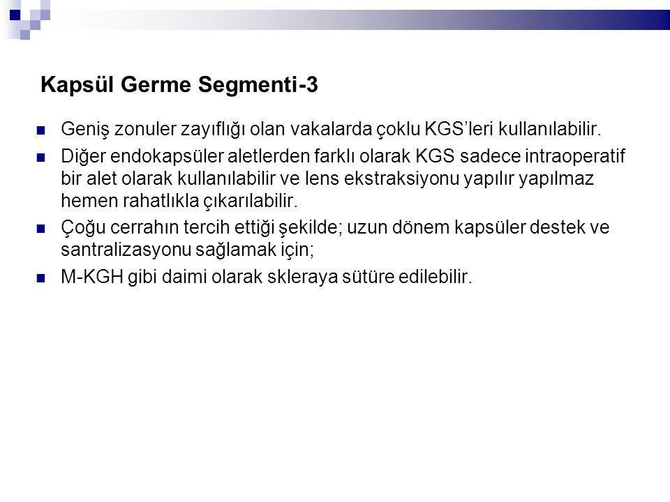Kapsül Germe Segmenti-3 Geniş zonuler zayıflığı olan vakalarda çoklu KGS'leri kullanılabilir.