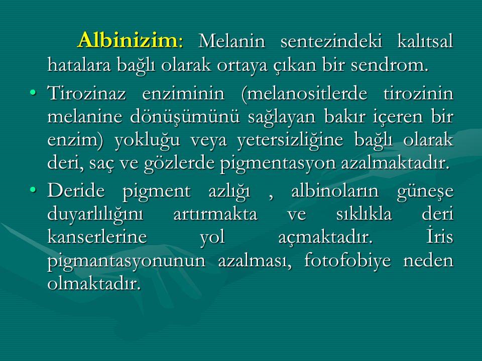 Albinizim: Melanin sentezindeki kalıtsal hatalara bağlı olarak ortaya çıkan bir sendrom. Tirozinaz enziminin (melanositlerde tirozinin melanine dönüşü