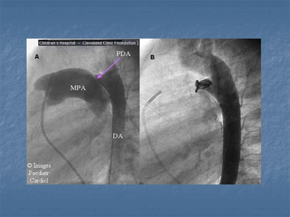 VASKÜLER RİNG ve PULMONER ARTER SLİNG Vasküler Ring: Aortik ark ve dallarının anormal gelisimi - Double aortik ark - Sağ aortik ark + Ligamentum arteriosum Innominate arter basısı (Trakea ön yüzde) Pulmoner Sling: Sol pulmoner arter sağ pulmoner arterden çıkar; trakea-özefagus arasından sola yönelir