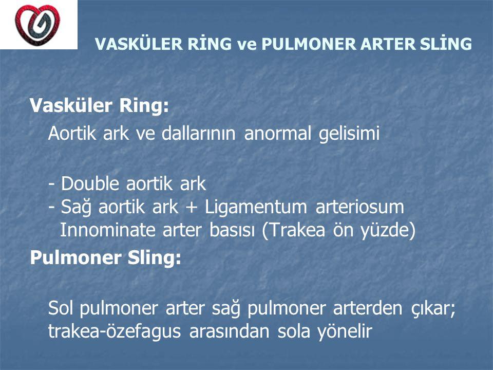VASKÜLER RİNG ve PULMONER ARTER SLİNG Vasküler Ring: Aortik ark ve dallarının anormal gelisimi - Double aortik ark - Sağ aortik ark + Ligamentum arter