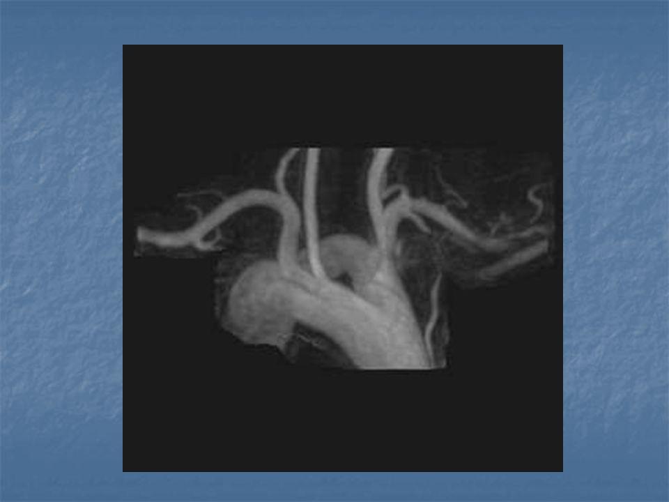 Klinik Stridor Öksürük Apne Disfaji Tekrarlayan akciğer enfeksiyonları Hiperekstansiyonda solunum rahatlar Katı gıda yutmakta zorlanma