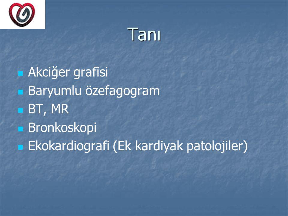 Tanı Akciğer grafisi Baryumlu özefagogram BT, MR Bronkoskopi Ekokardiografi (Ek kardiyak patolojiler)