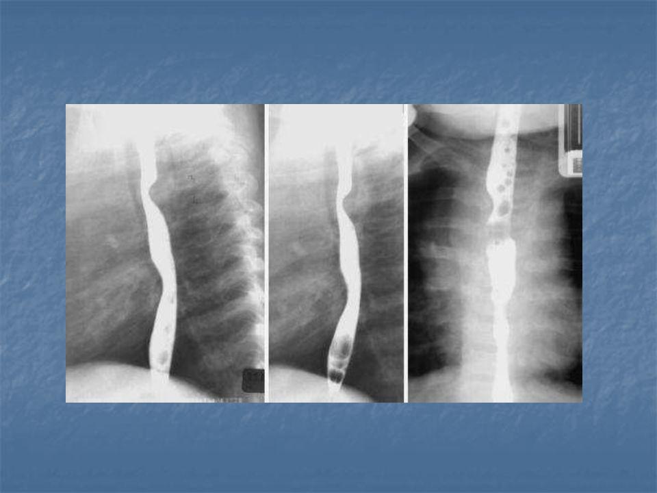Tedavi Double Aortik Ark: Arkın (ana damarlar korunarak) desenden aortaya impantasyonu Sağ Arkus: Ligamentum arteriosumun serbestlenmesi Innominate arterin sternum arkasına sabitlenmesi Pulmoner Sling: Sol pulmoner arter ana pulmoner artere implante edilir (CPB ile)
