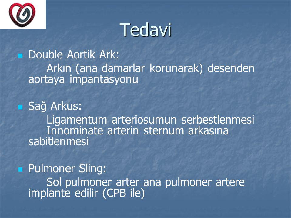 Tedavi Double Aortik Ark: Arkın (ana damarlar korunarak) desenden aortaya impantasyonu Sağ Arkus: Ligamentum arteriosumun serbestlenmesi Innominate ar
