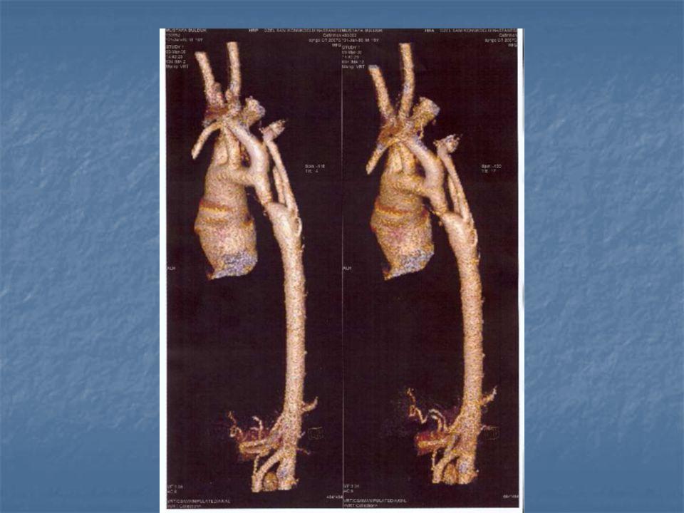 Oluşum Teorisi 1- Artmıs sağ ventrikül akımı (VSD) ve/veya azalmıs sol ventrikül volümü (konjenital mitral stenoz, aort stenozu)  azalmıs aortik kan akımı  gelismemis istmus 2- Duktal dokunun aorta içine doğru ilerlemesi (Duktal sling)