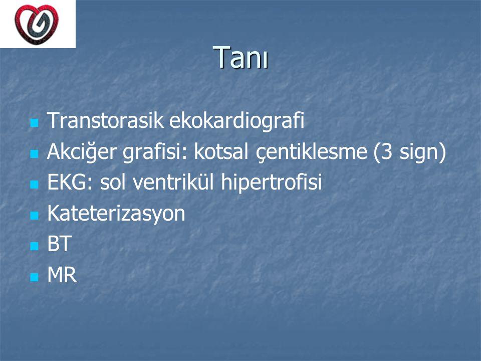Tanı Transtorasik ekokardiografi Akciğer grafisi: kotsal çentiklesme (3 sign) EKG: sol ventrikül hipertrofisi Kateterizasyon BT MR